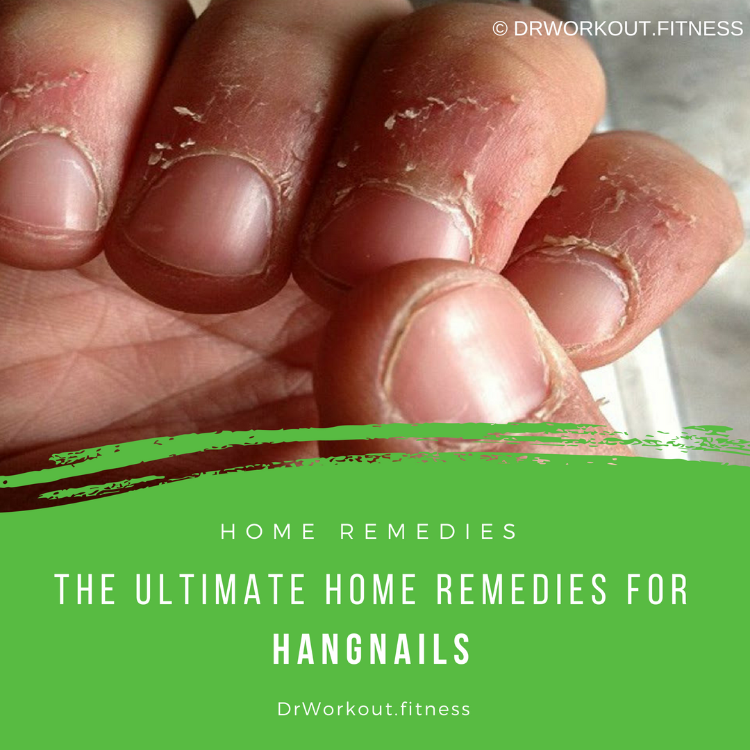 Home Remedies For Hangnails